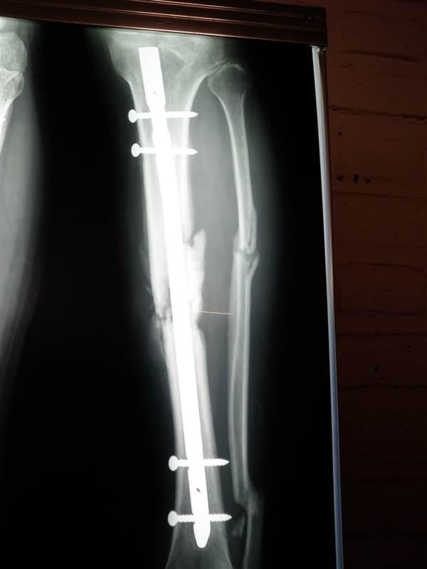 onderbeen fracturen....